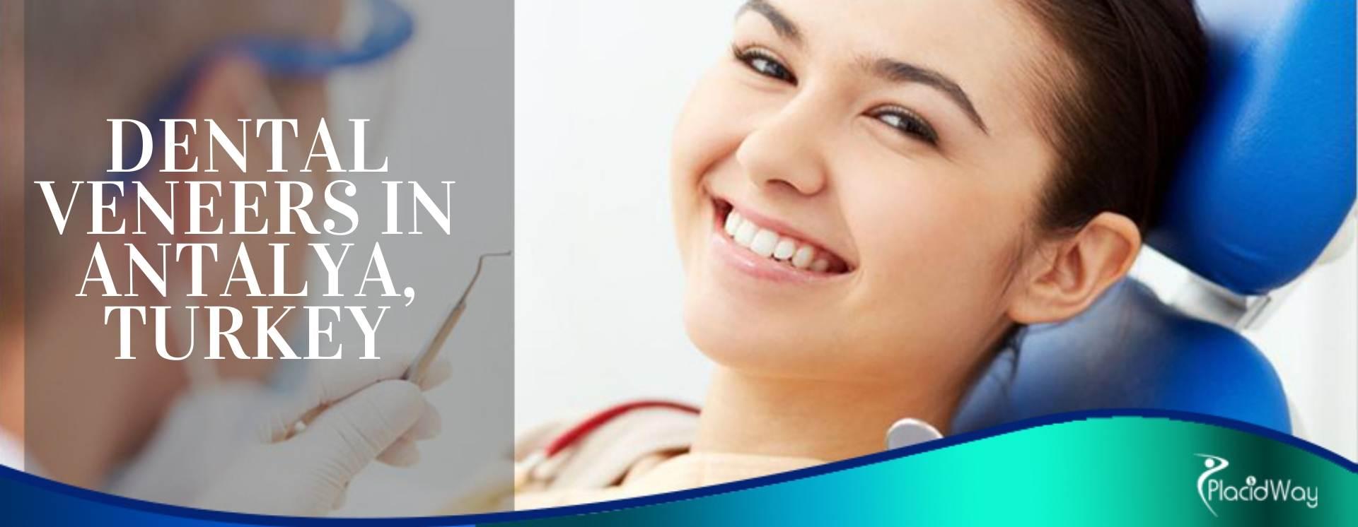 Dental Veneers In Antalya, Turkey
