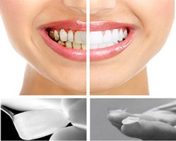 Dentart Implant and Aesthetic Dentistry