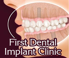 First Dental Implant Clinic