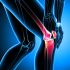 Do-I-have-Arthrosis-or-Arthritis