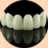 Best-Dental-Veneers-in-Liberia-Costa-Rica