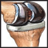 Dr-Narendra-Vaidya-Uses-Latest-Technology-in-the-Orthopedics-and-Joint-Replacement-Field