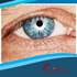 What You Need to Know About Cataract Surgery in Mexico