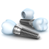 Dental Implants in New Delhi - Things to Know
