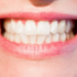 Learn About Dental Veneers in Mexico
