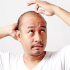 All-You-Need-to-Know-About-Hair-Transplant-in-Thailand