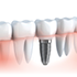 Infographics-Dental-Implant-Packages-in-India