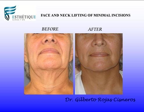 FACE LIFTING package