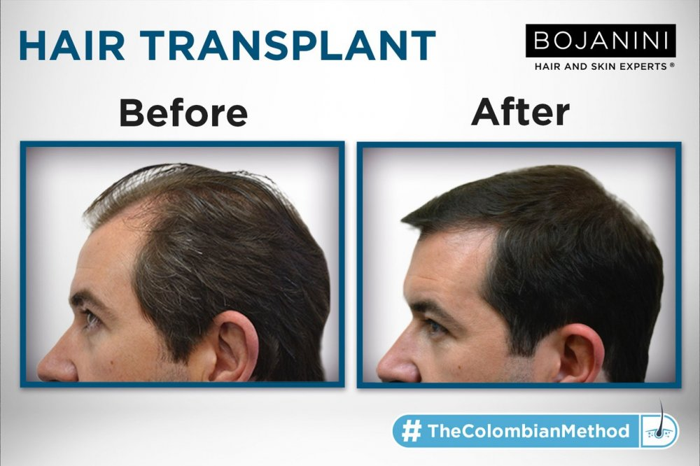 Bojanini Hair & Skin Experts Polanco Clinic
